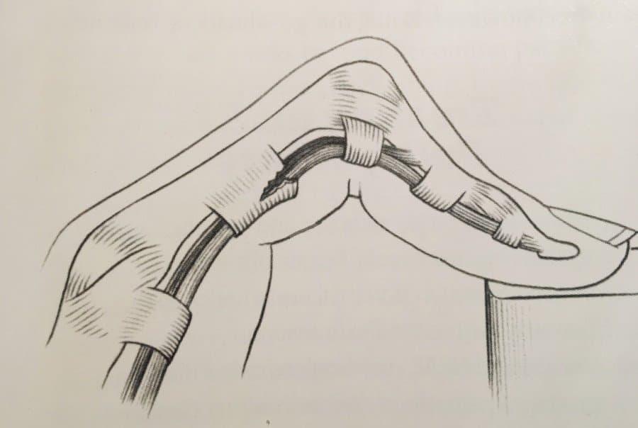 Ringband Verletzung Klettern