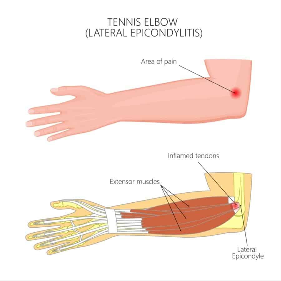 latereale Epicondylitis klettern